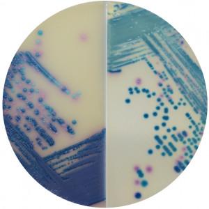 Хромогенная среда Mastitis