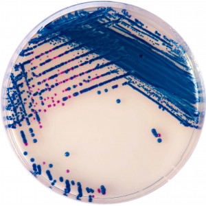 Хромогенная среда Streptococcus